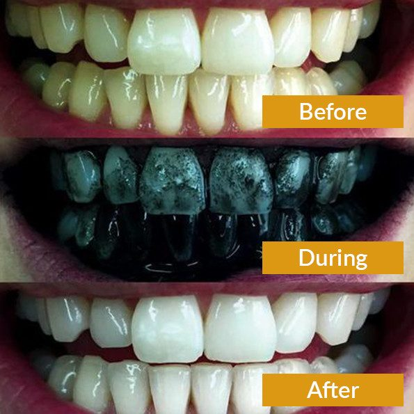 buy teeth whitening charcoal online 3